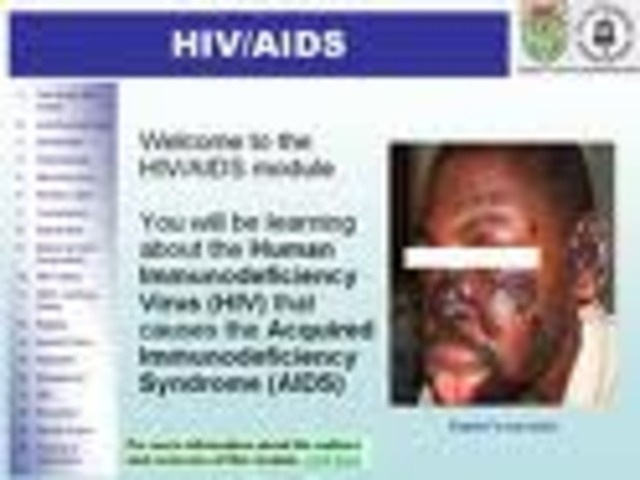 First death by HIV/aids
