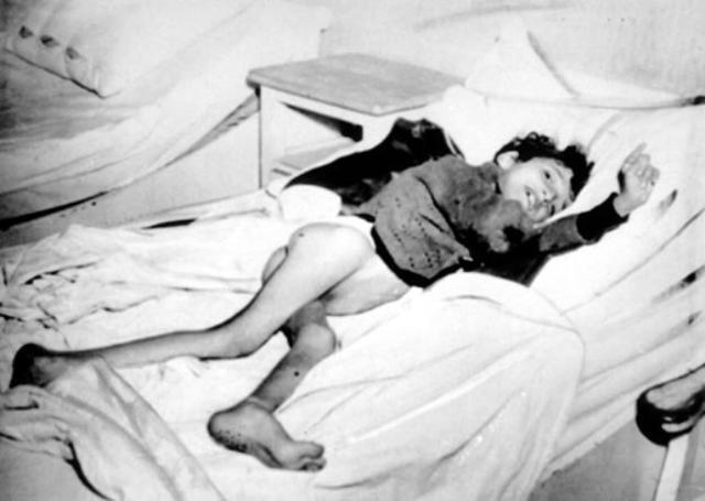 """Introducción de la """"Hungerkost"""" (Muerte por dieta de hambre) en todos los sanatorios de Alemania. Alrededor de 90.000 personas mueren como resultado de esta orden."""