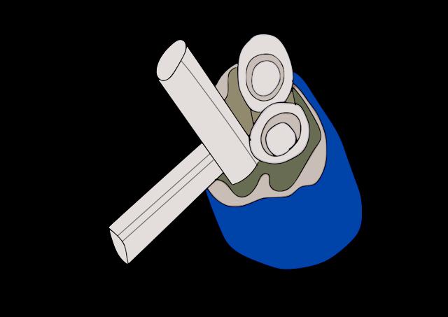 Corazon Artificial (Paul Winchell)