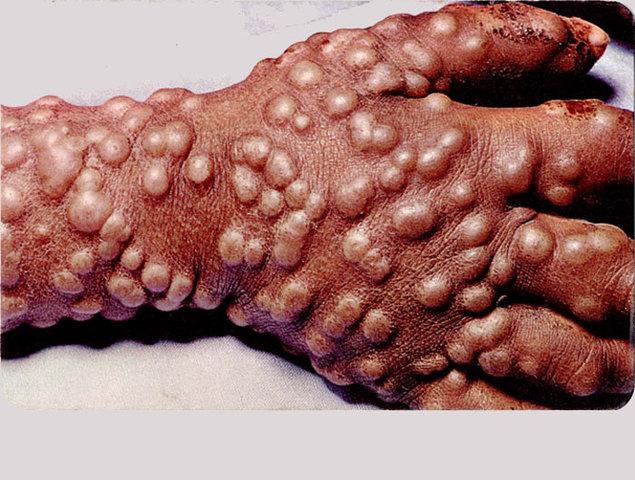 Smallpox Epidemic