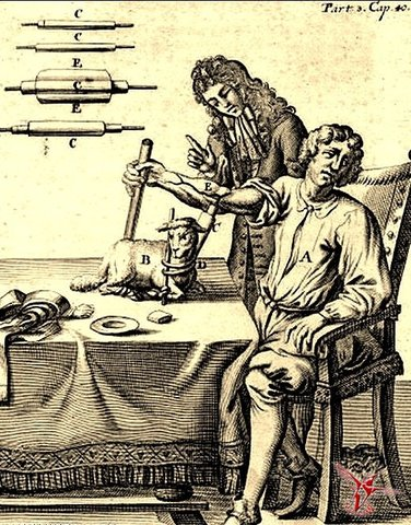 Первое переливание крови человеку, выполненное Жаном Дени