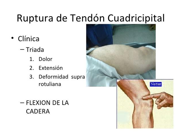 Lesión tendinosa