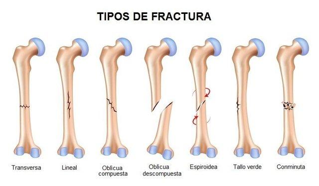 Lesión ósea (Fractura)