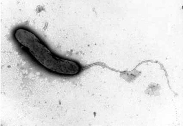 1817 Primera pandemia de cólera