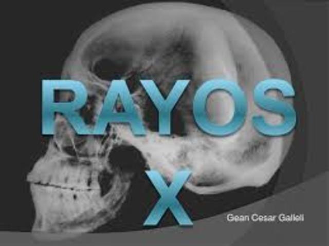 Rayos X.