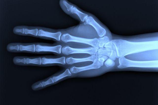 4. Les radiographies (SUITE)