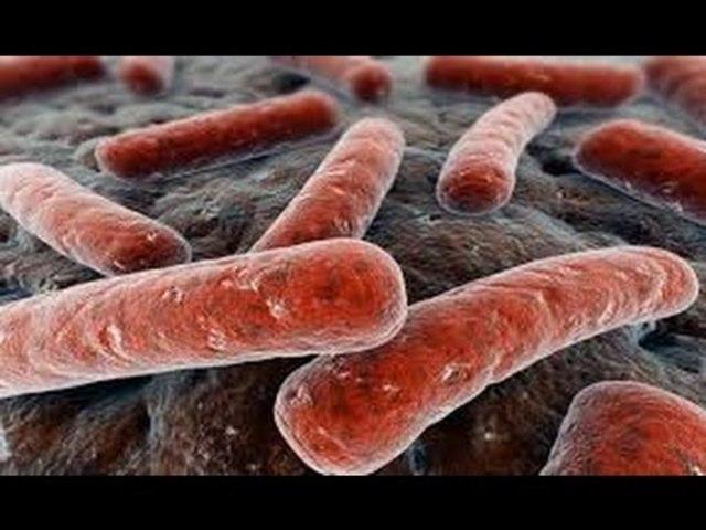 Koch: Aísla el bacilo que producía la tuberculosis
