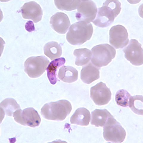 Plasmodium falciparum is described as the causative agent of
