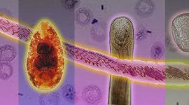 Historia de la Parasitologia  timeline