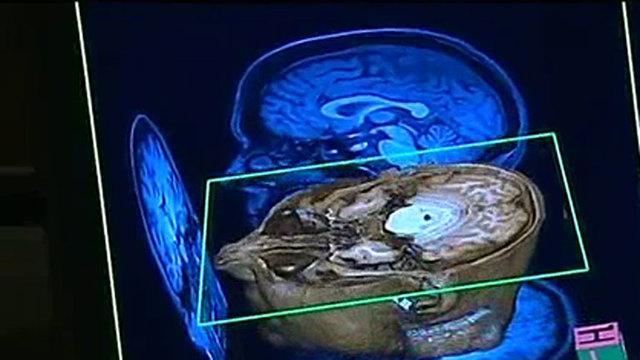 Mapeo Cerebral 3D del cerebro de 20 micrómetros de resolución