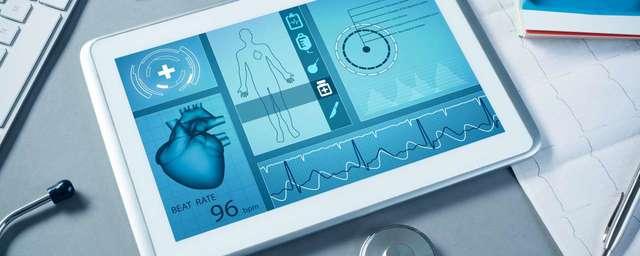 transmision  de EKG
