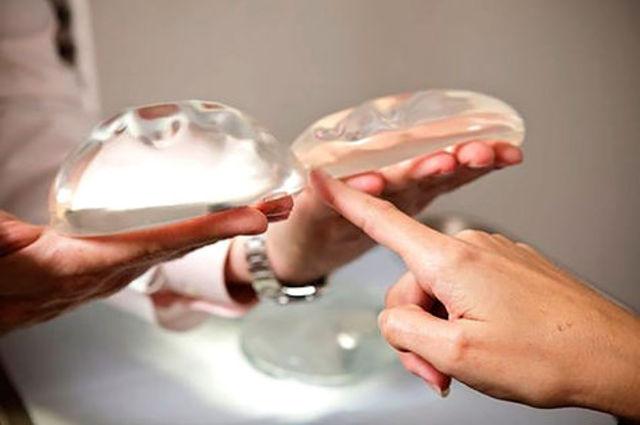 Creación de implantes de silicona