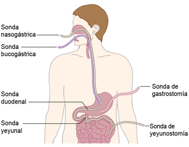 Nutrición por el esófago
