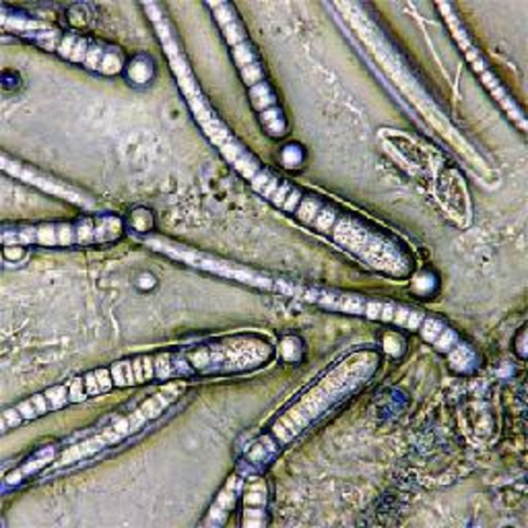 Descubrimiento de las formas de las bacterias