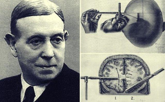 Egas Moniz comenzó a prácticar la Lobotomía