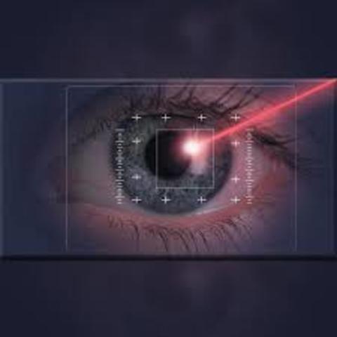 Laser para correccion de la vista