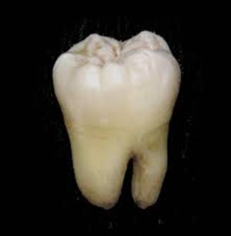 Lost of Tooth