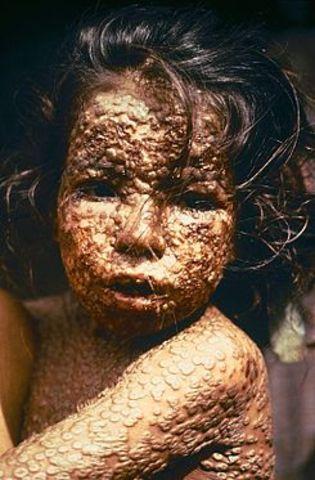 JENNER Vacuna contra la viruela.(Medicina)