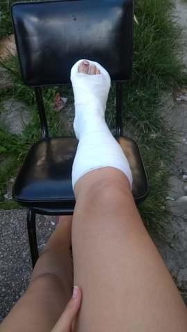 Mi pie fracturado