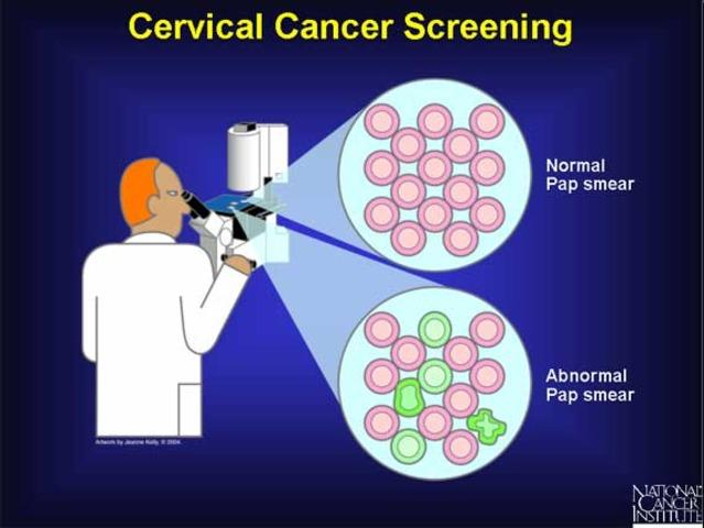 Cervical Cancer - Screening