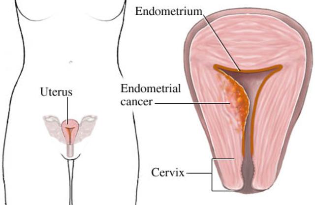 Endometrial (Uterine) Cancer