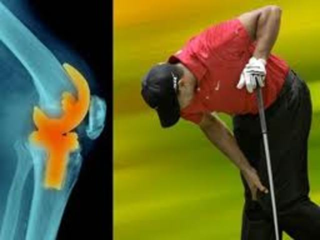 Tiger Woods undergoes major surgery on his knee.