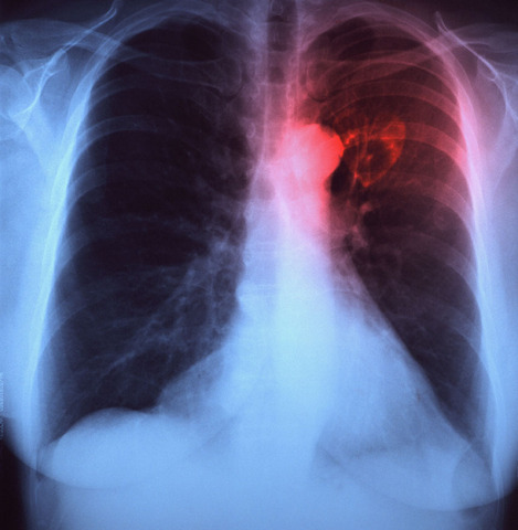 walking pneumonia - photo #5