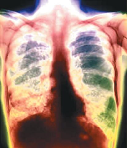 VIGOTSKY: contrae tuberculosis