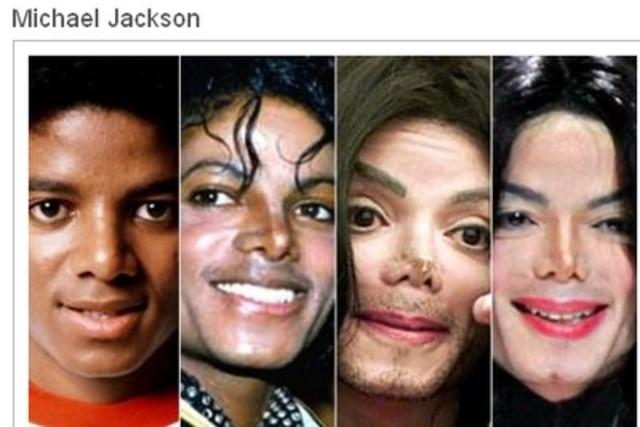 Muere Jackson