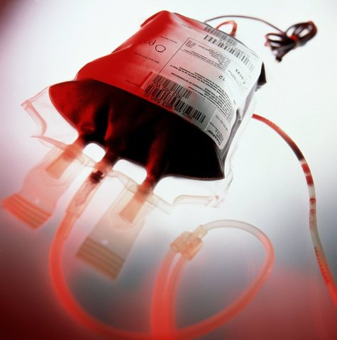 James Blundell performs the first successful human blood transfusion