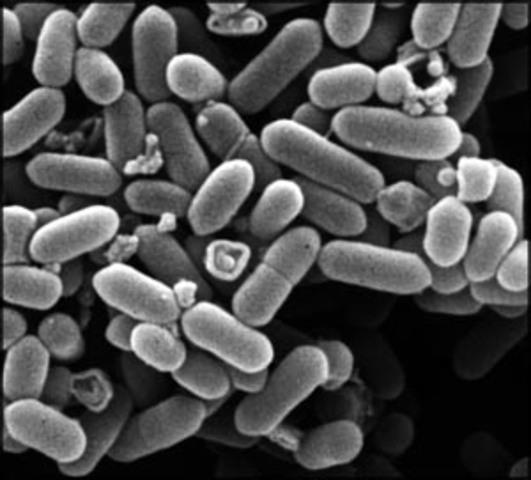 De första bakterierna bildas.