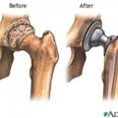 Metal-on-Metal Hip Replacement/Resurfacing Studies timeline