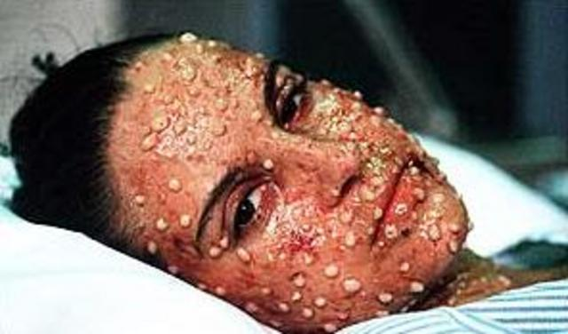 last fatal case of small pox