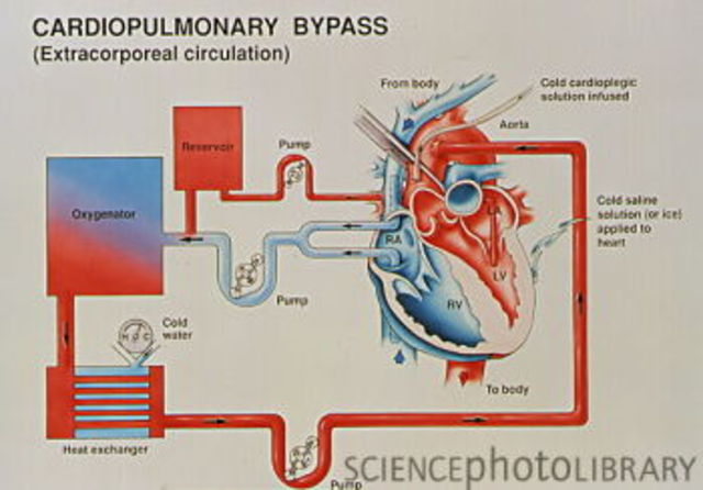 History of heart surgery timeline timetoast timelines heart lung machine ccuart Images