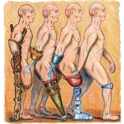 The History of Prosthetics- Then to Now timeline