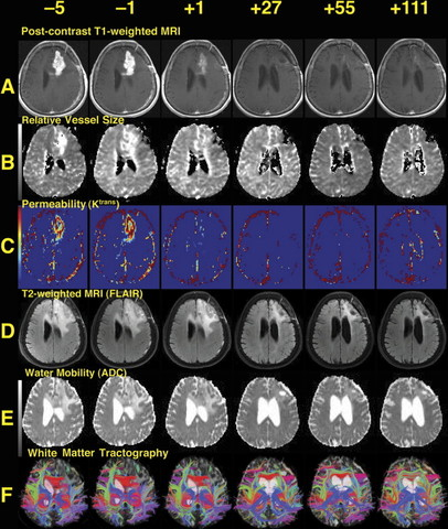 Normalization of glioblastoma vasculature in patients