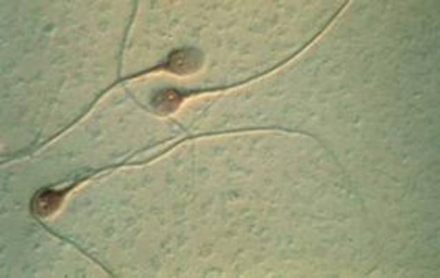 Esperma animal