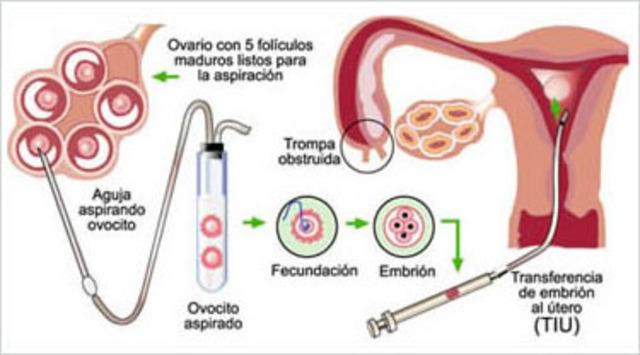 Primera fecundacion in vitro