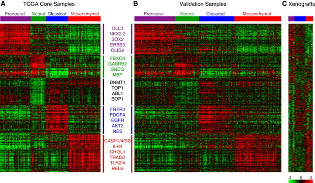Genomic Alterations in Clinical GBM Subtypes