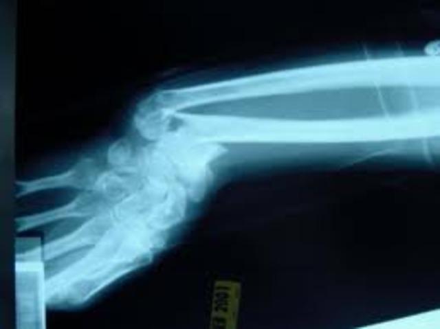 First Broken Bone