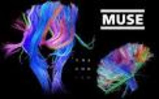 6o disco de MUSE: THE 2ND LAW.