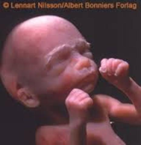 Baby At 18 Weeks