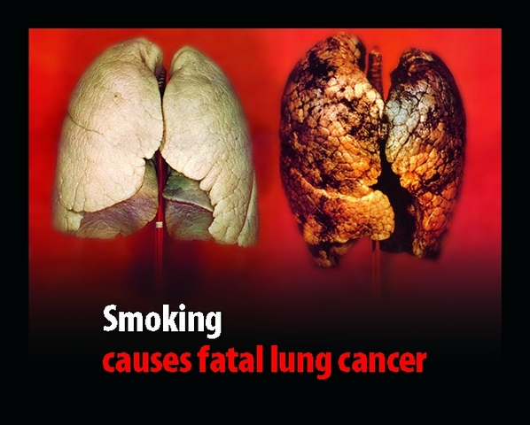 Studies Prove Deadly Effects of Smoking