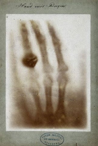 William Roentgen Discovered X-rays in 1895