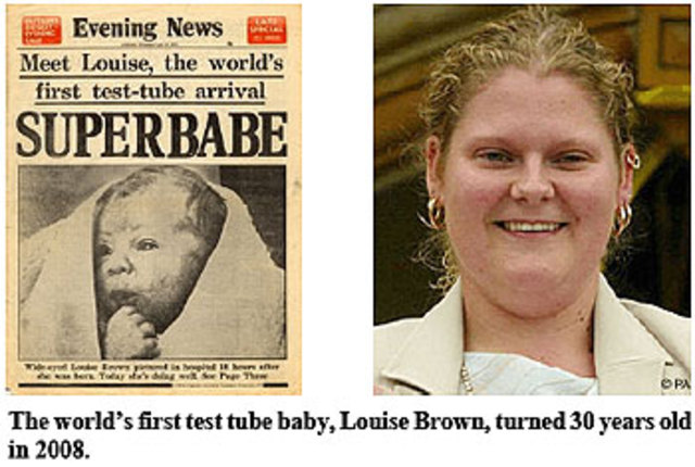 Louise Brown is born, marking the first successful birth of a child conceived by IVF