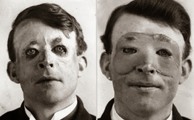 primera cirugia de Transplante en seres humanos
