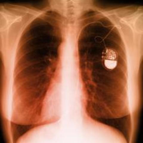 Marcapasos cardíacos