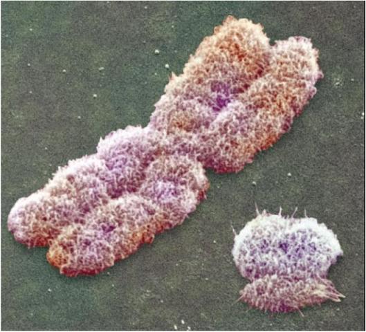 Ανθρώπινα μεταφασικά χρωμοσώματα.
