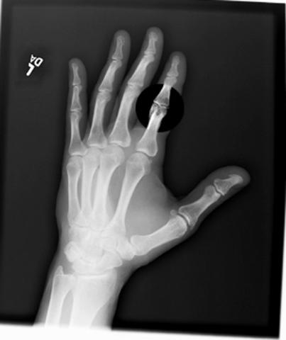 Broke My Index Finger