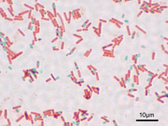 Se puede producir dos esporas en la misma célula madre Bacillus subtilis